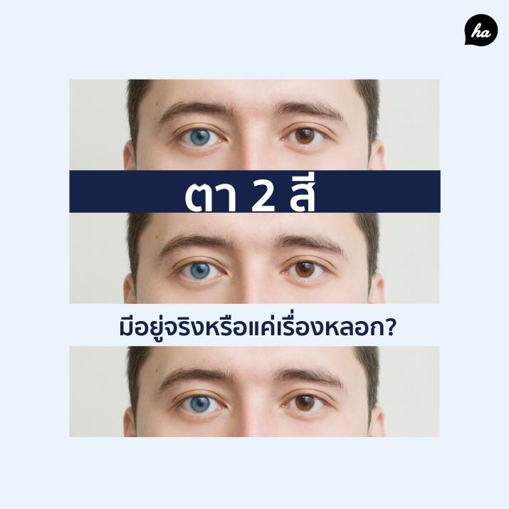 https://www.healthaddict.com/content/Heterochromia ลักษณะตา 2 สี ความยูนีค หรือเป็นสัญญาณของโรค