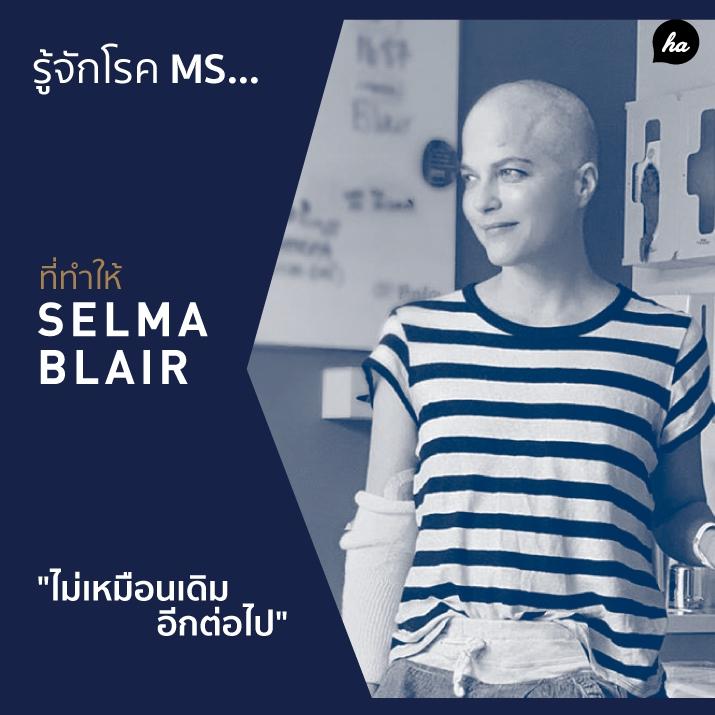 รู้จัก โรคปลอกประสาทเสื่อมแข็ง... ที่ทำให้ Selma Blair ไม่เหมือนเดิมอีกต่อไป
